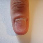 paznokcie-problematyczne-warszawa